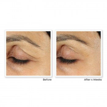 ProdImgs_RC_DEEP_WRINKLE_EYE-6